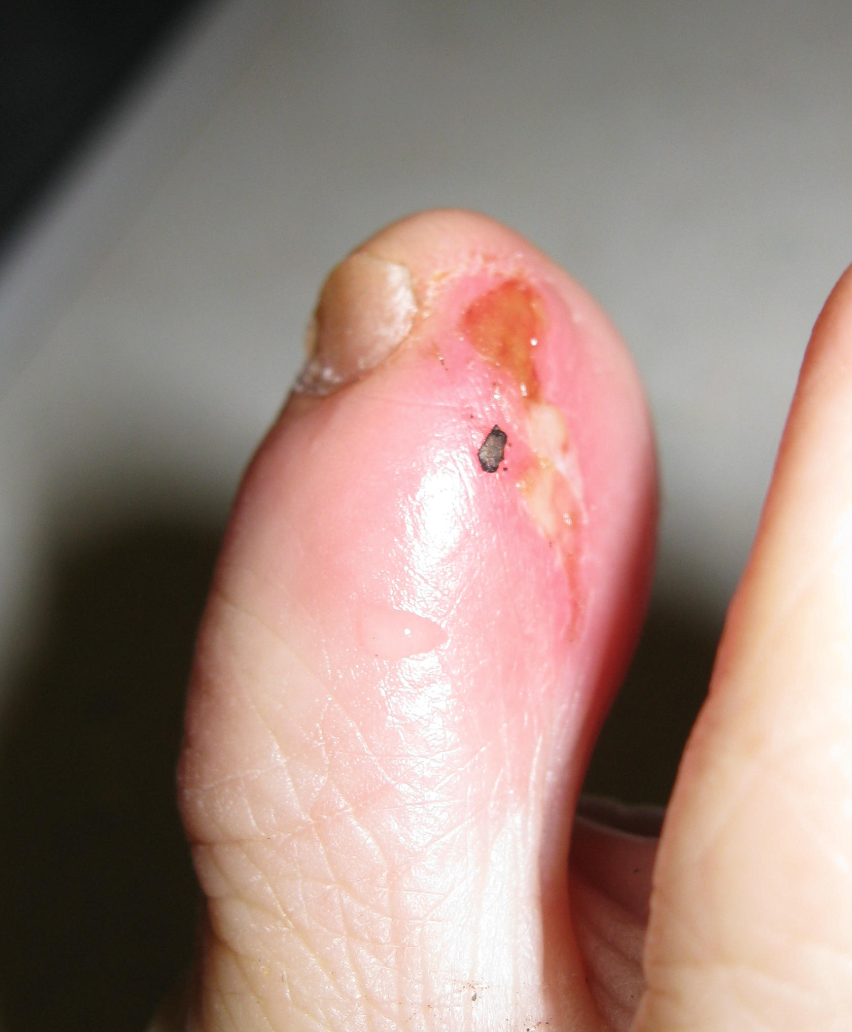 MRSA in small wound or cut
